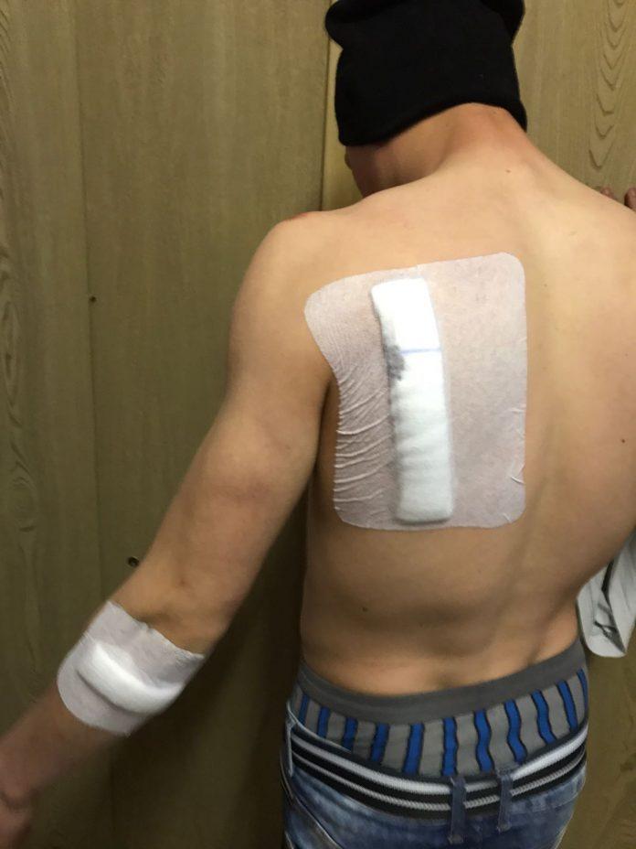 Eines der Opfer mit sichtbaren, multiplen Verletzungen - Die Schnittwunde beträgt knapp 20cm
