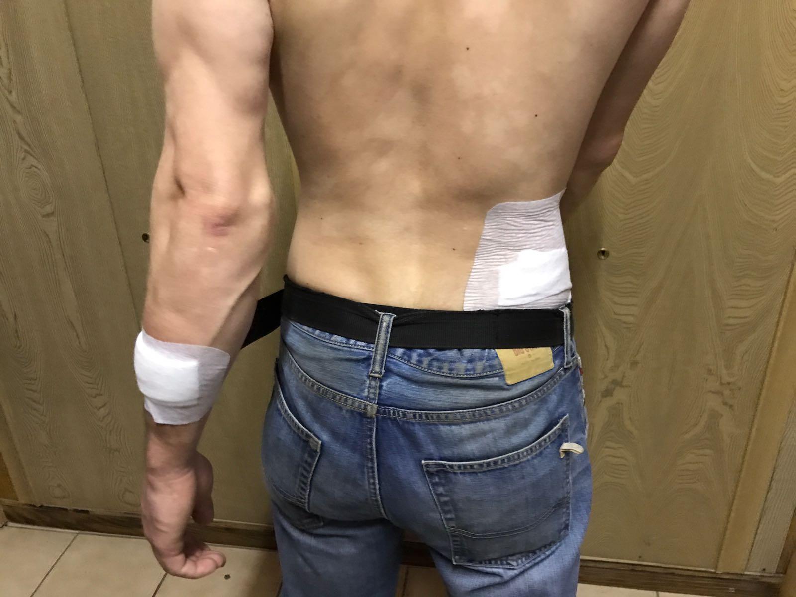 Drittes Opfer - Ebenfalls multiple Verletzungen