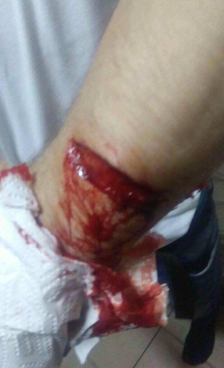 Schnitt am Arm - So brutal gingen die Angreifer vor