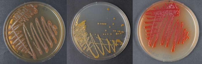 Wachstum ausgewählter Xenorhabdus (links und mitte) und Photorhabdus (rechts) Kolonien auf Agarplatten. Die unterschiedliche Pigmentierung weist bereits direkt auf die Produktion verschiedener Naturstoff-Pigmente hin. (Fotos: AK Bode)