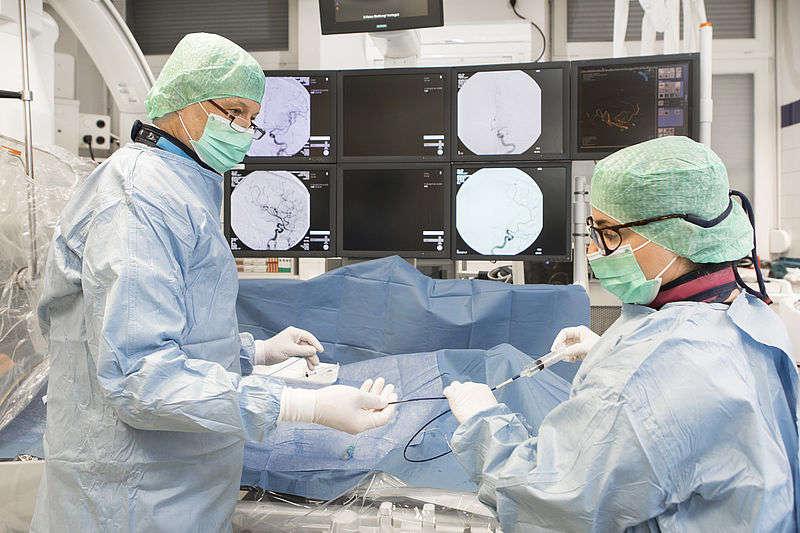 Thrombektomie: Bei rund jedem zehnten Schlaganfall-Patienten muss das Gerinnsel mit einem Katheter aus der blockierten Arterie entfernt werden (Foto: UMM)
